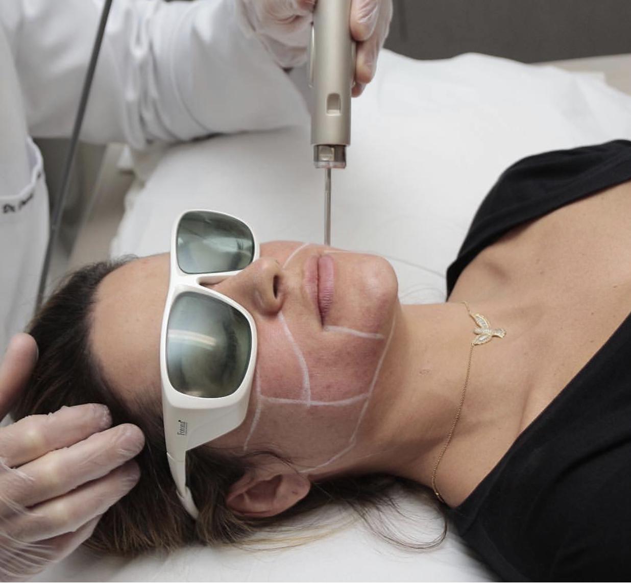 Laserterapia in medicina estetica
